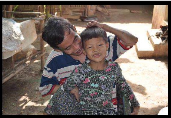 Making Leprosy History, Cambodia